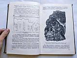 Резекция легких. Показания, Методика, Осложнения. Ф.Углов. 1950 год, фото 5