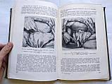 Резекция легких. Показания, Методика, Осложнения. Ф.Углов. 1950 год, фото 8
