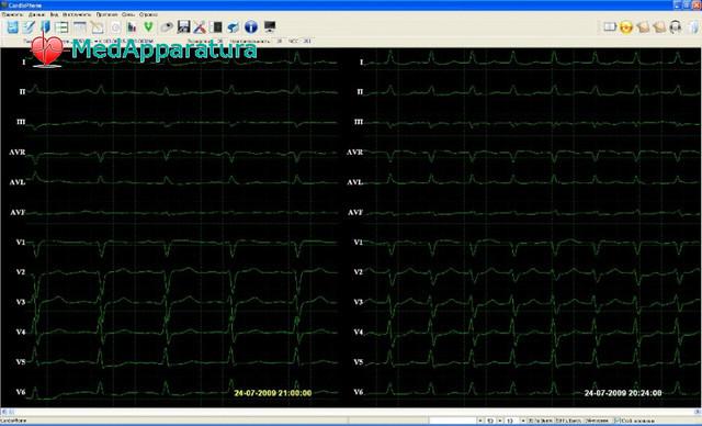 Комплектующие к Электрокардиографам (ЭКГ)