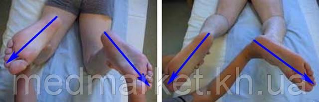 http://travmaorto.ru/files/image/knee/razriv-malobertsovaya-svyazka-kolena/posterolaterl-corner-test.jpg