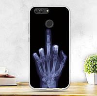 Силиконовый бампер чехол для Huawei Nova 2 с рисунком Рентген