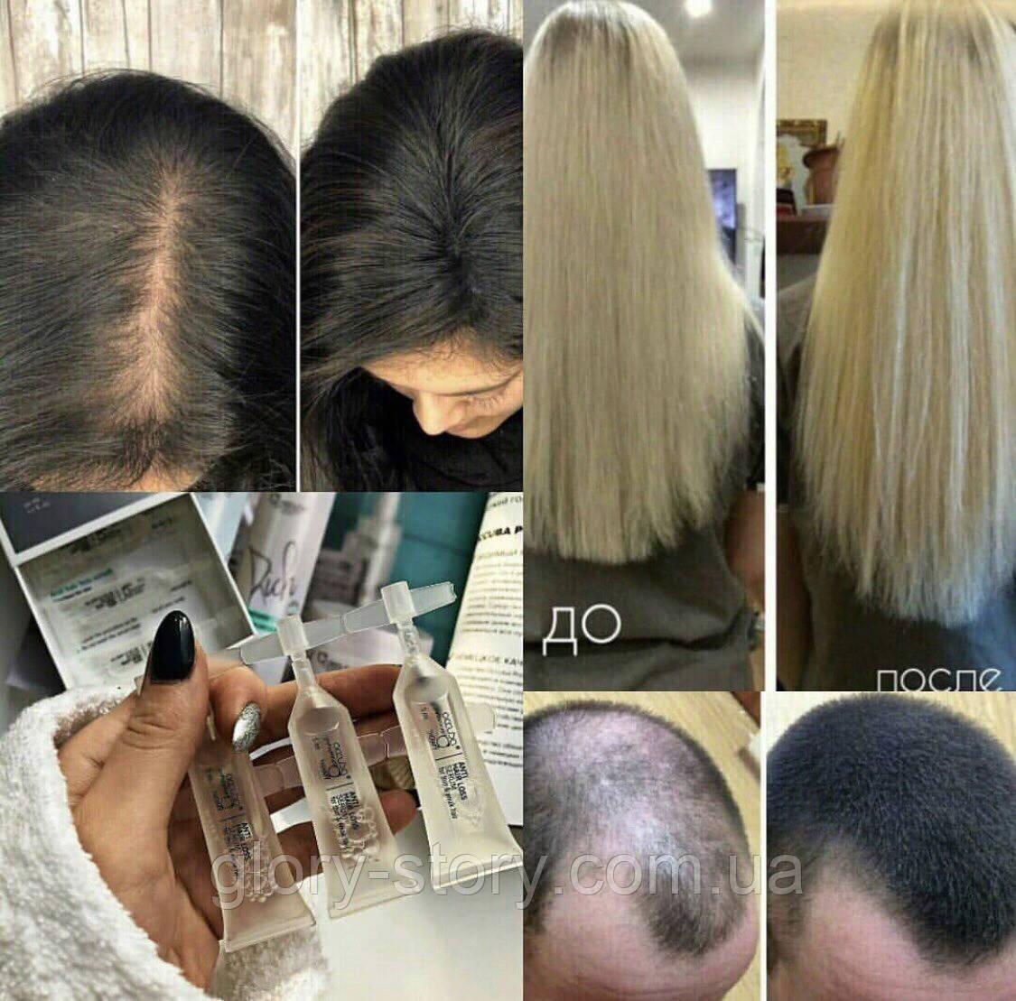 Кофе для волос — эффективное средство для роста и против выпадения
