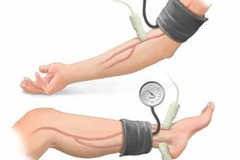 """Манжета для вимірювання кров'яного тиску на нижніх кінцівках """"MEDICARE"""""""