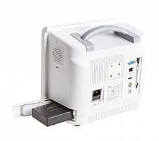 Монитор пациента ВМ800С