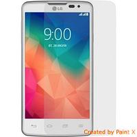 Защитная пленка для LG Optimus L60 X135/X145 - Celebrity Premium (clear), глянцевая