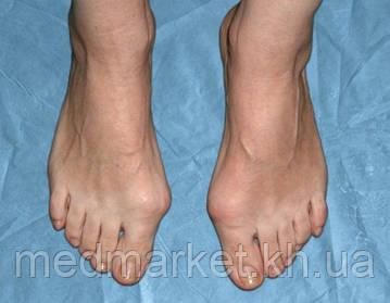 Шишка на большом пальце ноги Вальгусная деформация