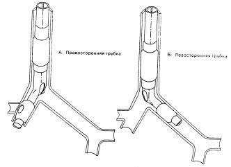 Набор двухпросветные бронхиальных трубок, левосторонних размер 39