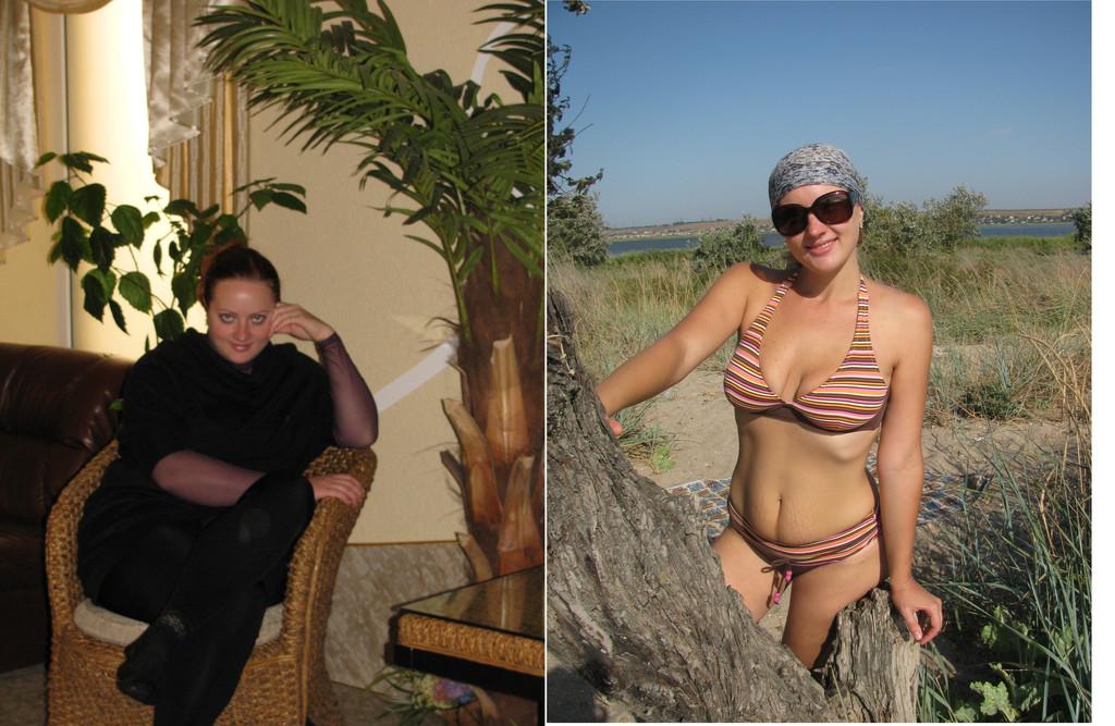 Похудеть реально. Мезотерапия. Киев. 2
