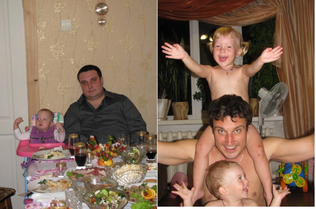 Похудеть реально. Мезотерапия. Киев. 3