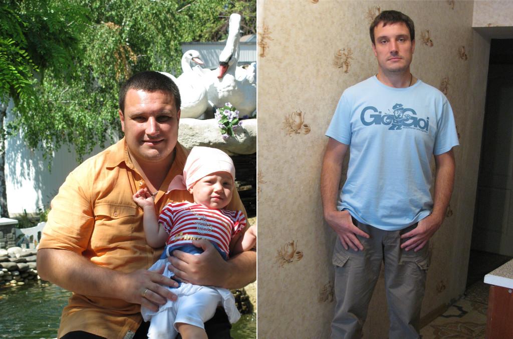Похудеть реально. Мезотерапия. Киев. 4