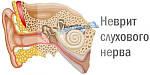 Применение лечебной грязи для лечения неврита слухового нерва.