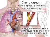 Лечение стенокардии, дистонии