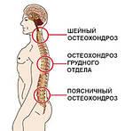 Лечение деформирующего остеоартроза, остеохондроза, остеоартроза