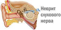 Лікування невриту слухового нерва
