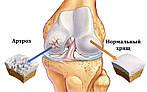 Лечение артроза, артрита