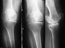 Рентген руки, ноги, суставов - детям, взрослым