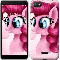 "Чехол на Xiaomi Redmi 6A Pinkie Pie v3 ""3549u-1531-15853"""