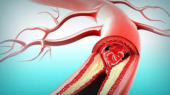 Артериум – фитокапсулы для здоровья сосудов