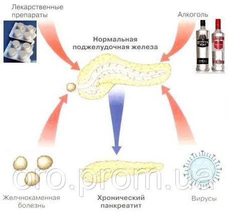 Хронический панкреатит. Современная тактика лечения - презентация ... | 427x455