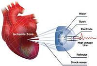 Ударно-волновая терапия сердечно-сосудистых заболеваний Кардиоспек (Cardiospec), фото 1