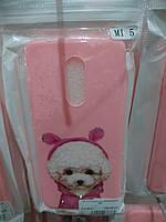Чехол TPU для Xiaomi Redmi 5