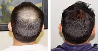 Мезотерапия для роста волос , фото 1