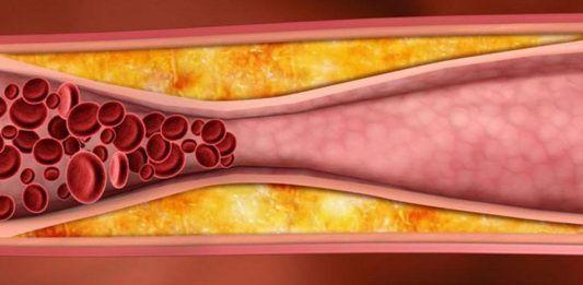 Плохой холестерин. Картинка 9.