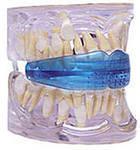 Зубные миофункциональные трейнеры для детей компании MRC
