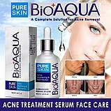 Набор для проблемной кожи Анти-акне, Pure Skin BIOAQUA 3шт, фото 2