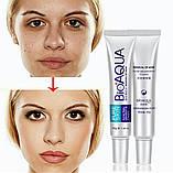 Набор для проблемной кожи Анти-акне, Pure Skin BIOAQUA 3шт, фото 4