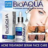 Пенка для умывания анти-акне для проблемной кожи BIOAQUA Pure Skin Anti Acne Cleanser 100 ml, фото 5