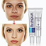 Пенка для умывания анти-акне для проблемной кожи BIOAQUA Pure Skin Anti Acne Cleanser 100 ml, фото 6
