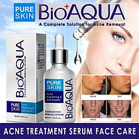 Сыворотка для борьбы с акне, пост-акне, от прыщей и высыпаний BIOAQUA Pure Skin 30 ml