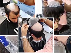 Мужская система замещения волос. Накладка при облысении из натуральных волос