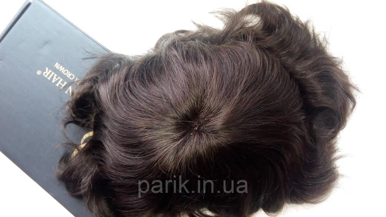 Система замещения волос для мужчин вид сверху
