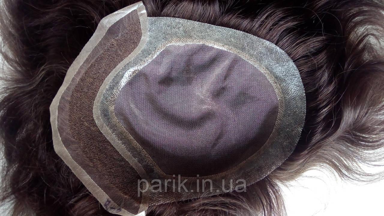 Система замещения волос для мужчин изнутри