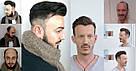 Система замещения волос для мужчин. Накладка на лысину (при облысении) из натуральных волос на клею, фото 2