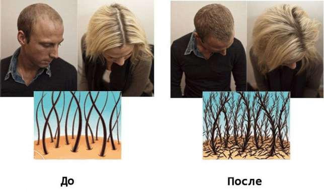 Отзыв о самом лучшем шампуне от выпадения волос
