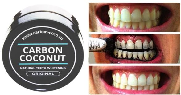 Carbon Coconut (Карбон Коконат) — порошок для отбеливания зубов
