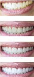 Carbon Coconut (Карбон Коконат) — порошок для отбеливания зубов, фото 6