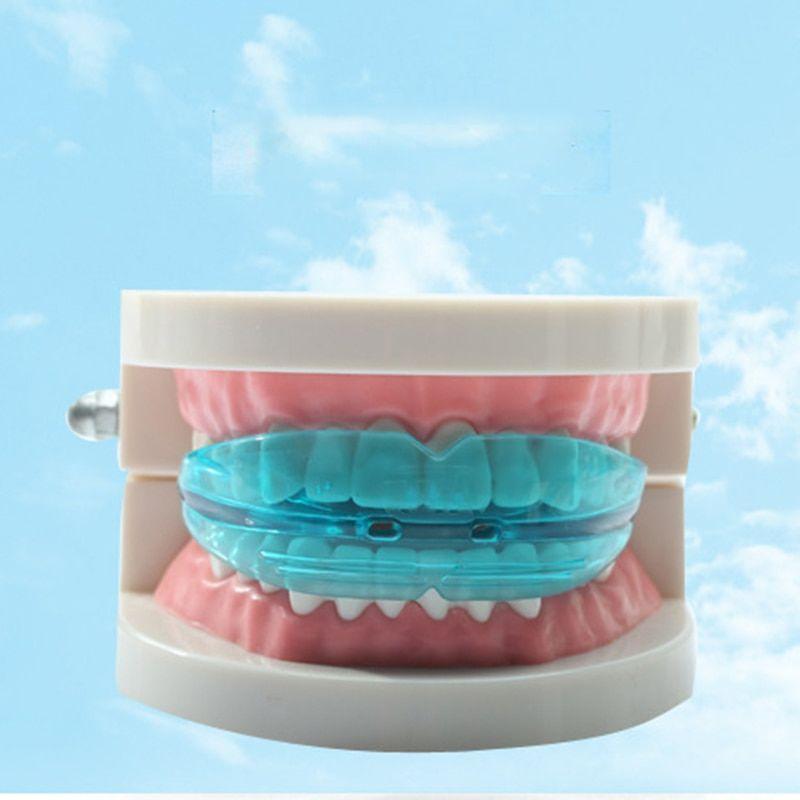 G-Tooth Trainer (Джи-Тус Трейнер) — трейнер для выпрямления зубов