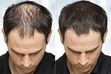 Загуститель для волос Toppik (Топпик), фото 8