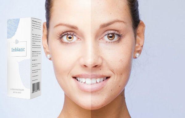 Инбланк (Inblanc) – отбеливающее молочко для лица и тела
