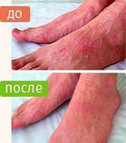Крем Здоров препарат от дерматита с пчелиным ядом, фото 6