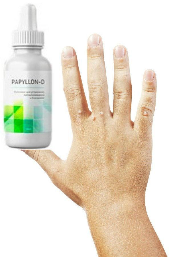 От папиллом и бородавок Папиллон Д (Papyllon-D)