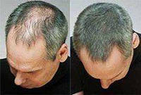 Топпик (Toppik) загуститель для волос, фото 1