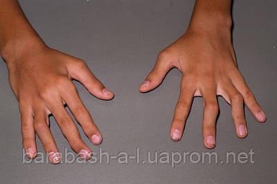 Болезни суставов и костной системы