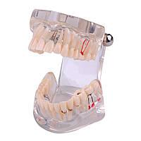 Модели верхней и нижней челюстей с патологией