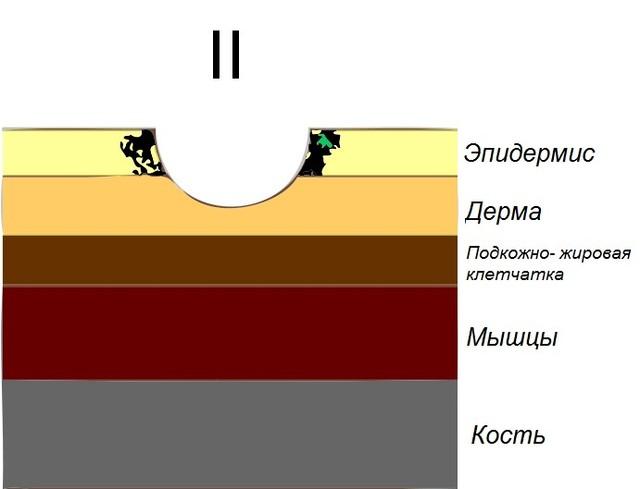 2 Степень пролежней — частичное снижение толщины кожи, связанное с повреждением собственно кожи; В виде пузыря, ссадины, поверхностной язвы или неглубокого кратера.