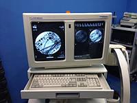 Радиология С-дуга Hologic Fluoroscan Premier Mini 60000